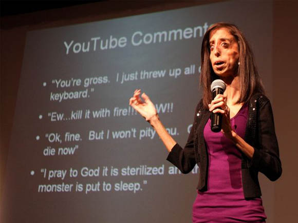 Image result for lizzie velasquez cry